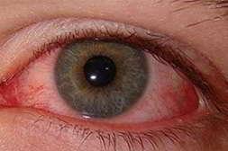 Vizox восстанавливает кровообращение