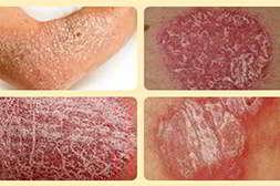 Псорикс устраняет бляшки псориаза