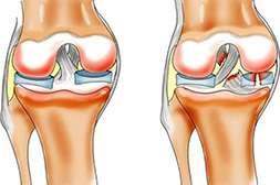 Сустадонт восстанавливает поврежденные ткани