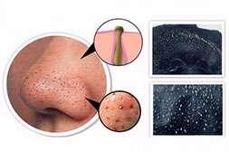 Средство Lanbeena выводит токсины, шлаки, загрязнения