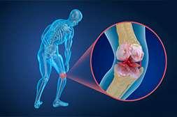 Крем Артонин предотвращает рецидивы.
