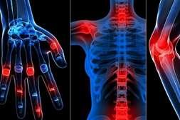 Препарат Сустакор оказывает положительное влияние на кости, хрящи, связки.