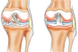Капсулы Сустакор способствуют регенерации тканей и структуры смазки.