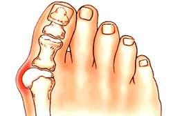 Благодаря Valgusmend снимается отёчность, боль, дискомфорт при ходьбе.