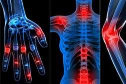 Артрофикс лечит различные суставные заболевания.