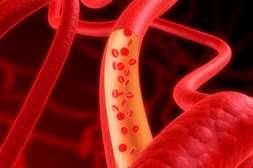 Восстанавливает проходимость сосудистых русел лекарство Гипертофорт.